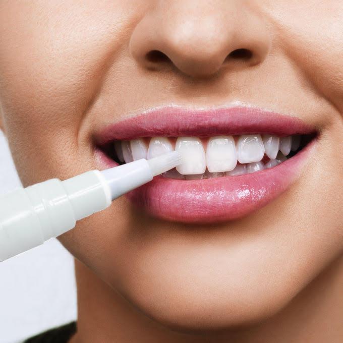 Stylo de blanchiment des dents - Stylo de blanchiment des dents naturelles.
