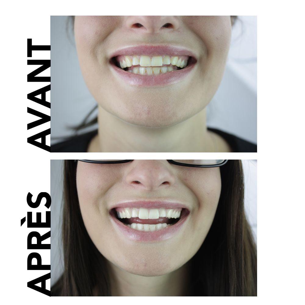 dentifrice blanchissant dents naturelles avant et après