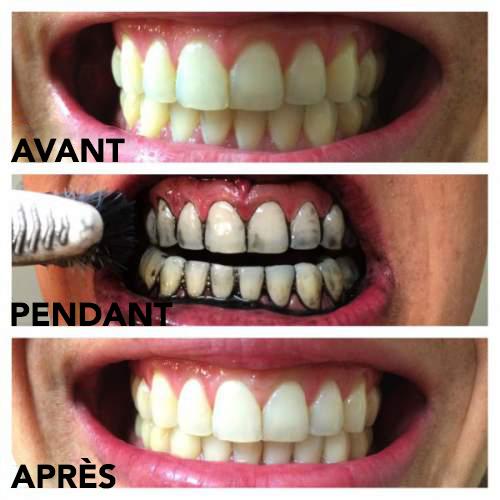 Blanchissez vos dents avec du charbon actif avant et après